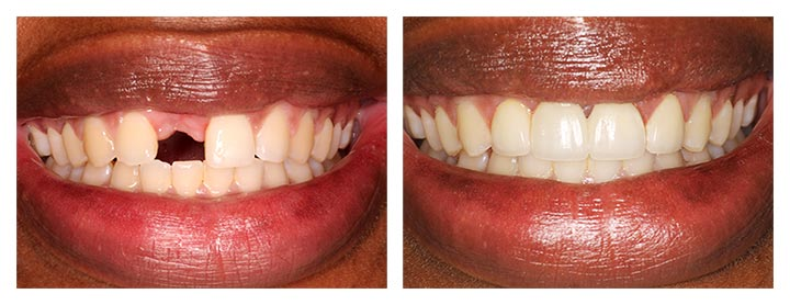 dental crowns and bridges before and after photos