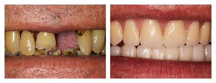 dental implant dentures before and after photos